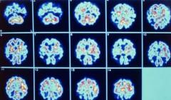 cultivo celular sintomas alzheimer